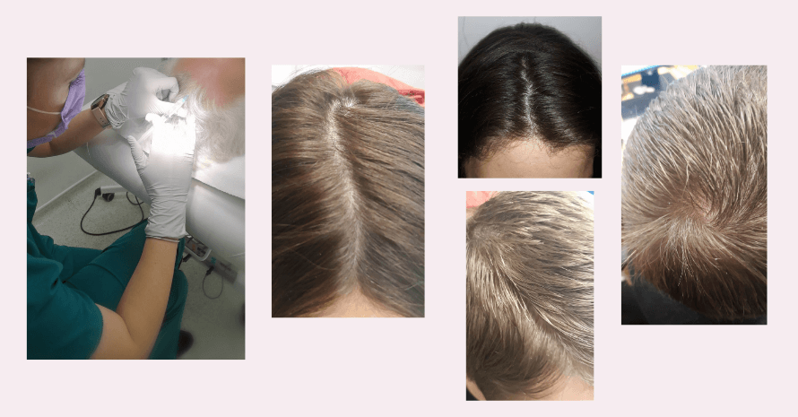 hair-mesotherapy