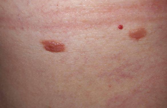 terapia-na-melanoma-malignum-na-kozhata