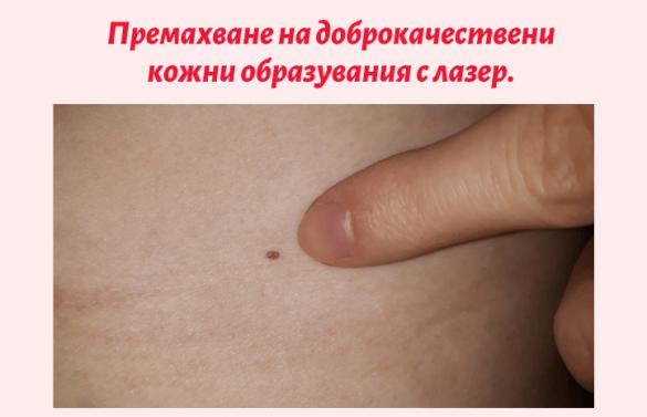 ceni-lazerni-proceduri