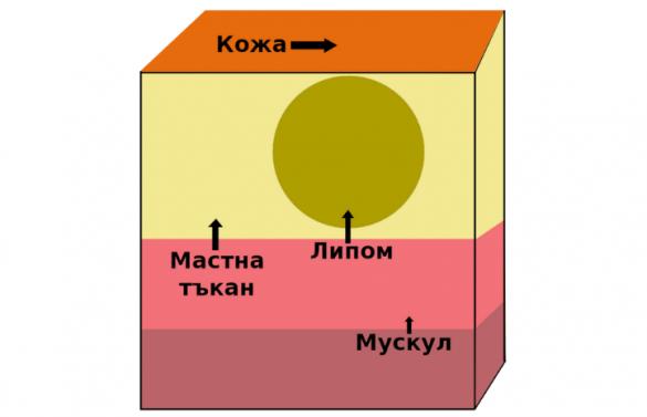lipomi-lechenie