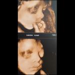 Фетален ултразвук 3D - бебе